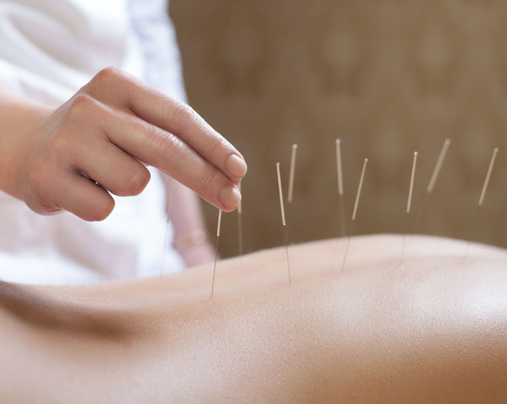 What does acupuncture feel like?